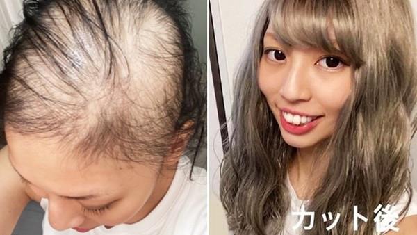 打完莫德納狂掉髮!大眼萌妹全身還長滿蕁麻疹,一個月後禿光只能戴假髮