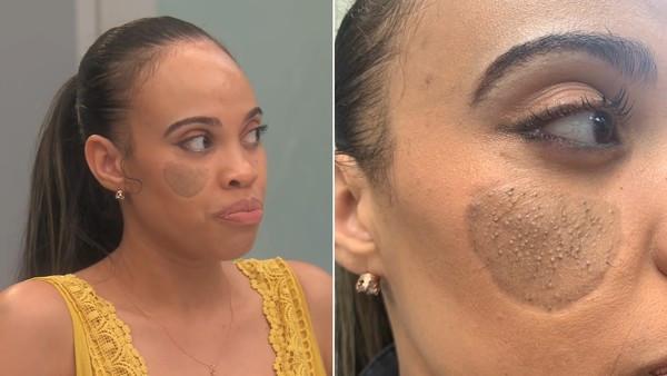 臉上長Q硬恥毛!小時被狗咬掉肉「醫拿下面皮膚補」 嫩媽慘變陰臉人