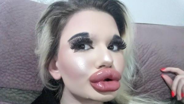 狂打21次玻尿酸!迷唇姐女大生巨唇頂到鼻 不顧醫勸繼續整:大驚小怪