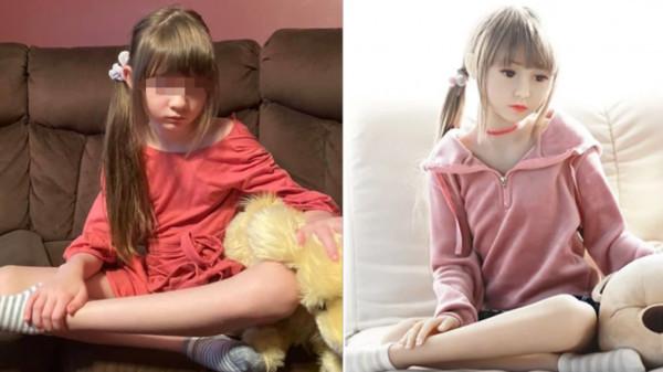 罕病女童被做成情趣娃娃!媽驚覺「連穿著都一樣」痛哭:網路上到處賣