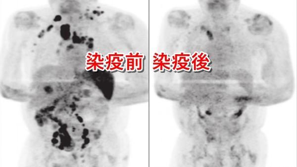 感染新冠「淋巴腫瘤卻消失了」!癌男起死回生 醫護直呼罕見