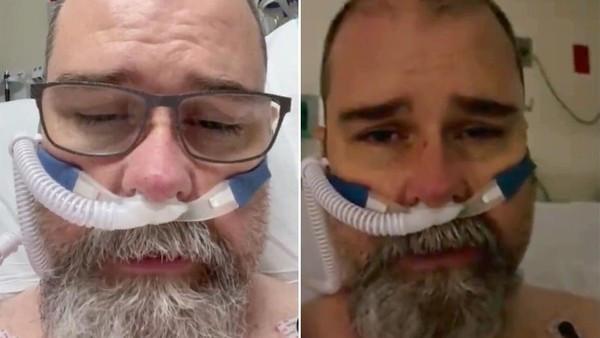 堅信「戴口罩是政治陰謀」!鐵齒男染疫靠呼吸器續命 拍片悔:我錯了