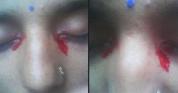 眼睛來月經!25歲女生經期「上下一起出血」 就診醫也困惑:全身都正常
