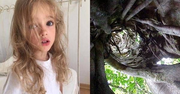 小女孩意外掉近樹洞裡,原本以為安全救出就沒事了,沒想到幾天後她的肚子竟然出現了異狀!!